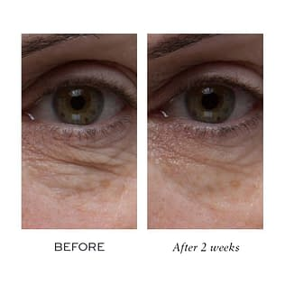 Elemis Peptide4 Eye Recovery Cream